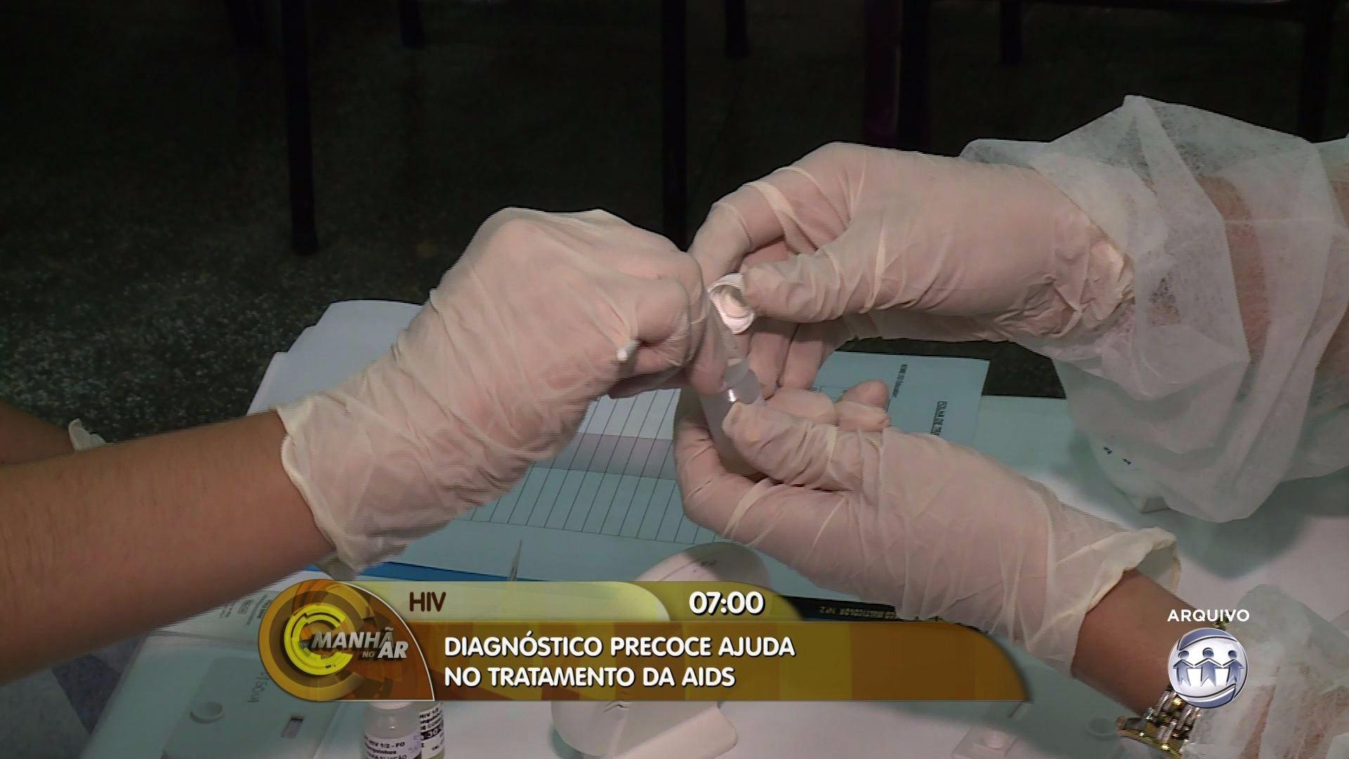 ALERTA: MANAUS É A 3ª CIDADE COM MAIS CASOS DE HIV - Manhã no Ar 30/03/17